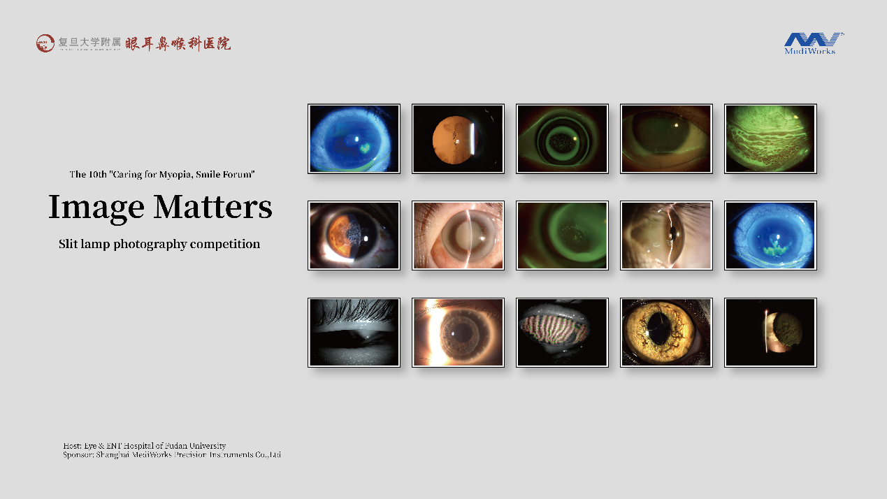 Slit Lamp Photo Competition Sponsored by MediWorks Raises Ophthalmology's Significance